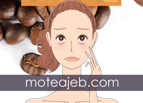 Removing dark eyes - رفع تیرگی های دور چشم