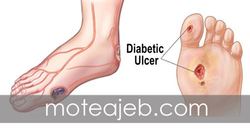 Prevent-diabetic-foot-ulcer